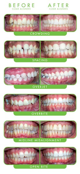 ClearCorrect Cases